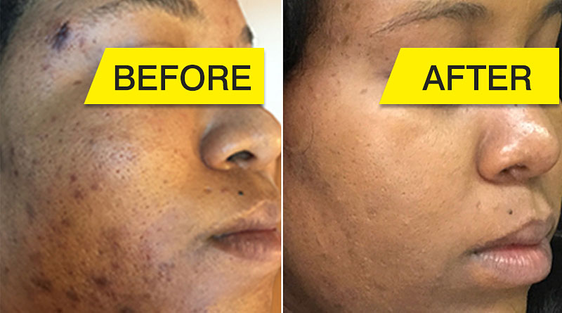 Chloasma Before And After